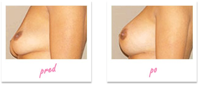 BreastExtra zvětšení poprsí - Před a po výsledky