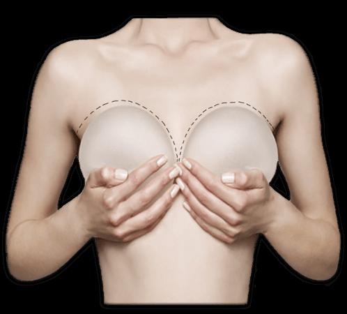Zvětšení poprsí plastickou operací