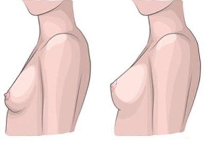 3 tipy, jak na povislá prsa