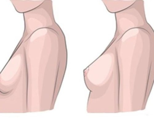 3 tipy, jak na povislá prsa: víme, jak se jich zbavit a jak jim přecházet!