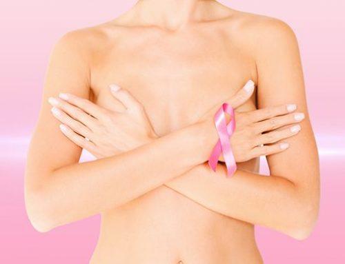 Samovyšetření prsu: účinná prevence, jak předcházet rakovině prsu