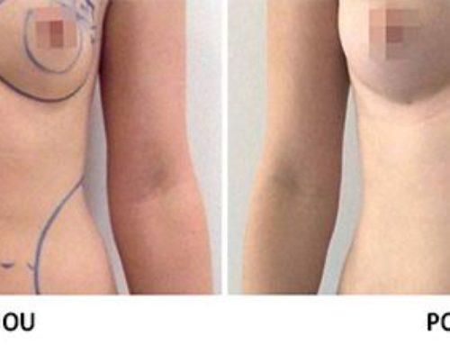 Zvětšení prsou vlastním tukem: trend nebo nová neinvazivní metoda?